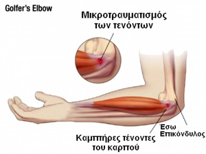 tennis-elbow-02